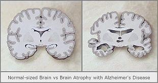 normal-sized brain vs brain atrophy with Alzheimer's disease