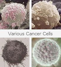 various cancer cells